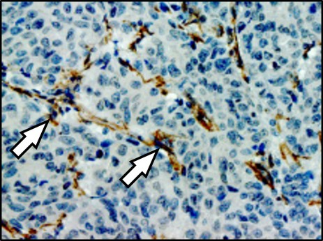 Lung metastasis in a breast cancer patient: the arrows indicate fibroblasts (brown) that communicate with metastatic cancer cells. Cell nuclei are stained blue. © Oskarsson, DKFZ/HI-STEM